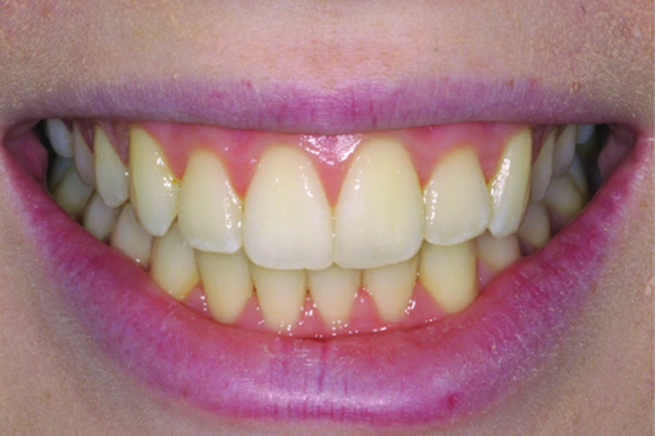 2Fast-ortho-After.jpg