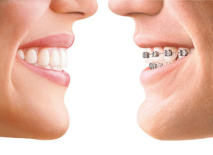 Bespoke braces