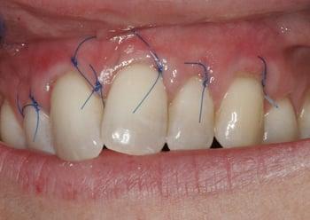 Ms L 30-5-18 stitches