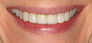 Ms W 25-11-16 smile