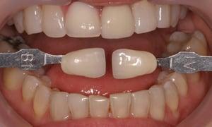 Ms W 26-10-16 whitening