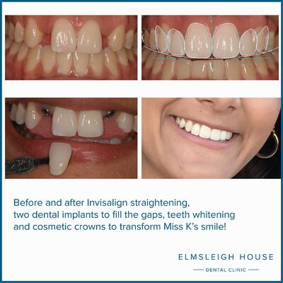 Invisalign and dental implants at Elmsleigh House Dental Clinic