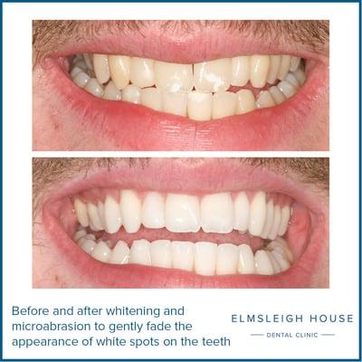 Mr C teeth whitening