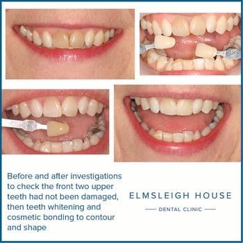 Mrs AW teeth whitening