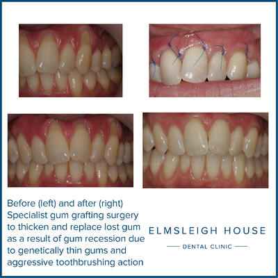 Ms L Perio gum grafting surgery
