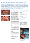 Dental Alveolar Trauma