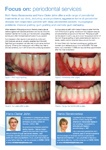 Periodontal Services