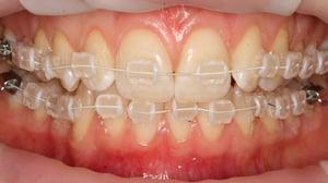 Cfast straightens adults' teeth in around 6 months