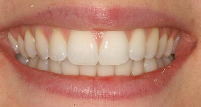 After Cfast, whitening and cosmetic bonding