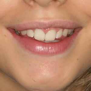 Patient happy after cosmetic bonding closed the gap