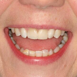 Mrs W after whitening
