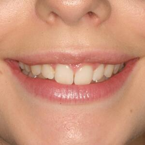 Patient didn't like the gap between her teeth