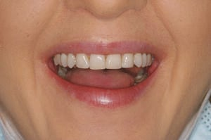 Patient after cosmetic bonding and teeth reshaping at Elmsleigh House