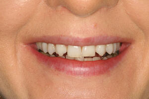 Pt before cosmetic bonding at Elmsleigh House Dental Clinic