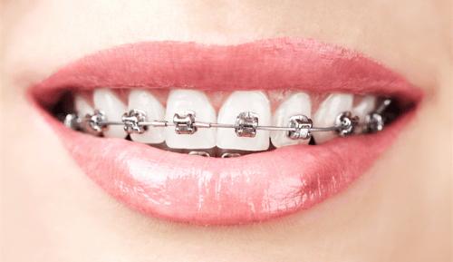 damon_braces