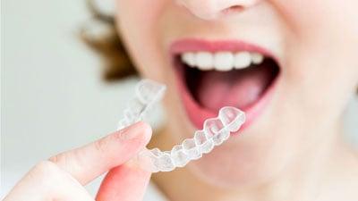 teeth-straightening-001.jpg
