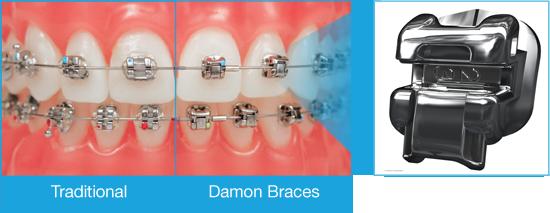 Damon-braces-Compare.png