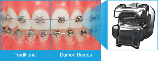 Damon-braces-Compare.png