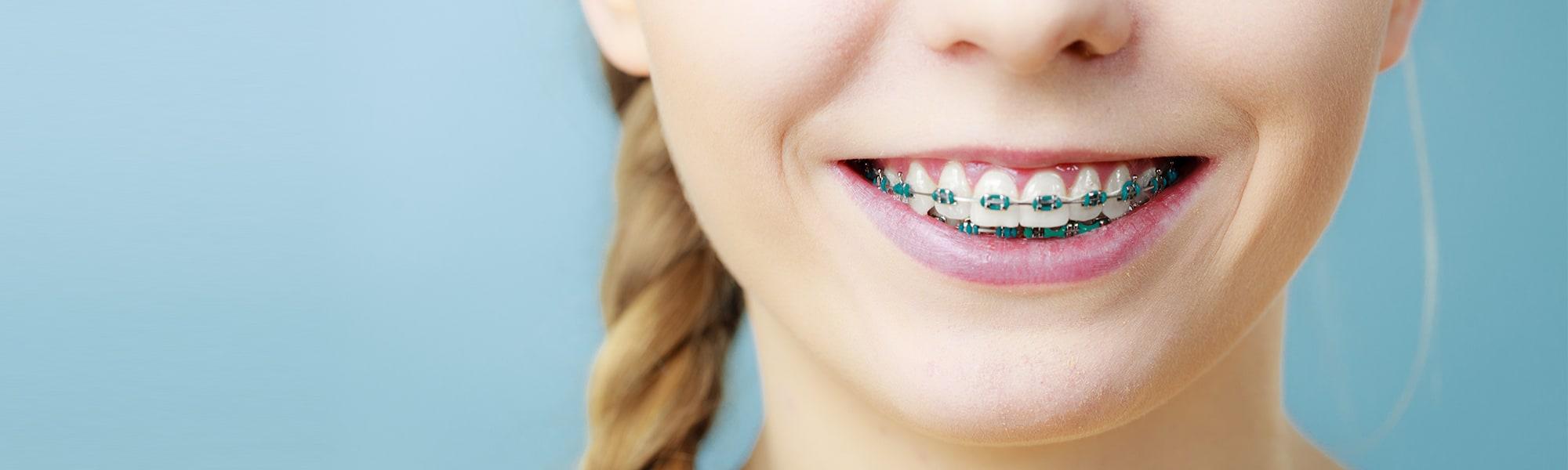Teeth Straightening.jpg