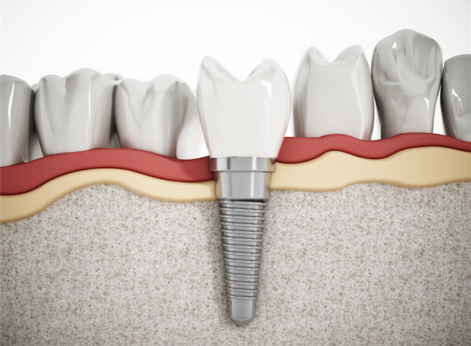 dental_implants-3.png