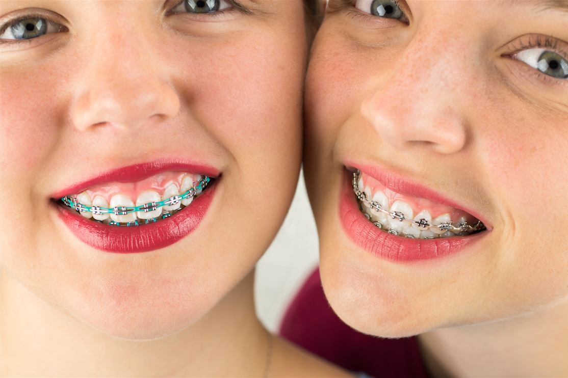 types_of_braces.png
